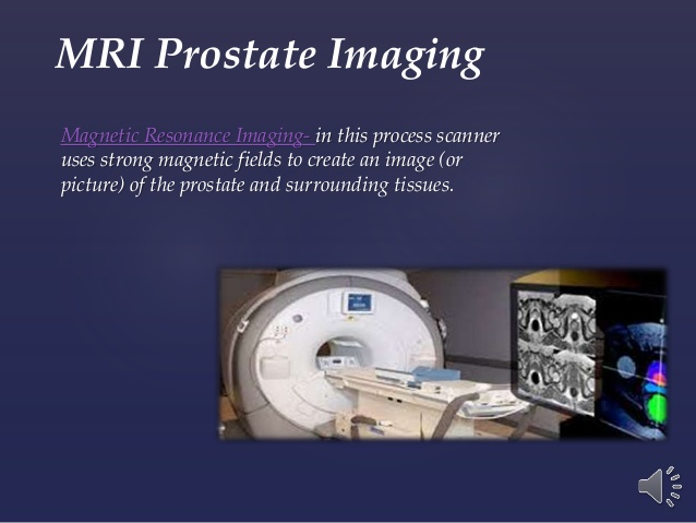 trus guided prostate biopsy techniques